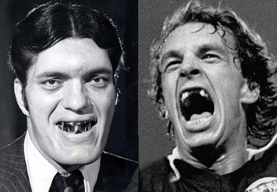 "Actor Richard Kiel, who plays Jaws in the James Bond film ""The S"